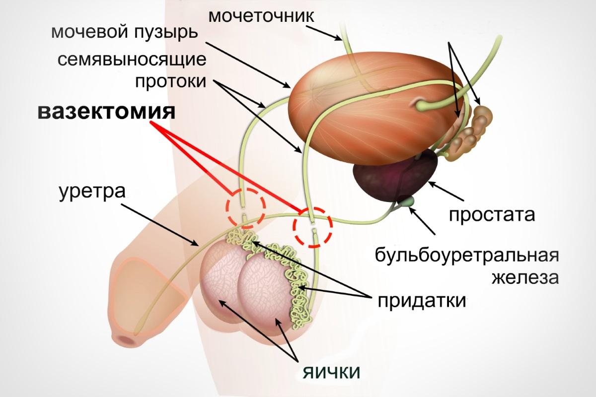 Операция вазэктомия