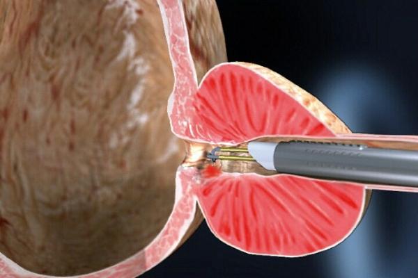 Малоинвазивные операции при аденоме простаты