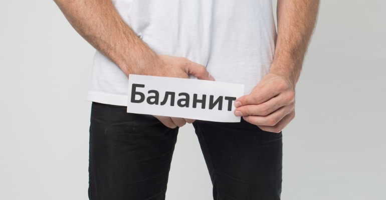 Лечение баланита у мужчин в домашних условиях