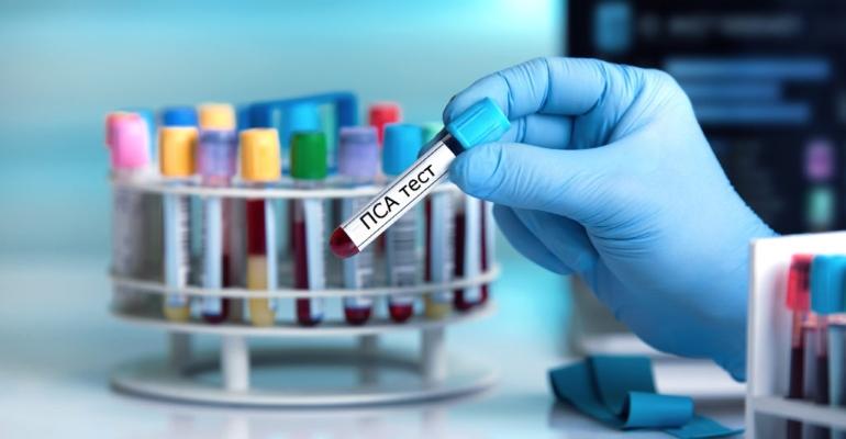 Анализ крови - ПСА общий при простатите: норма уровня, что это такое, а также значение его превышения